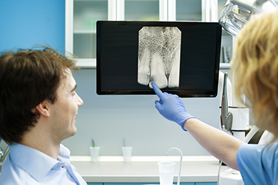 Panoramic X-rays Provide More Detail Than Traditional X-rays